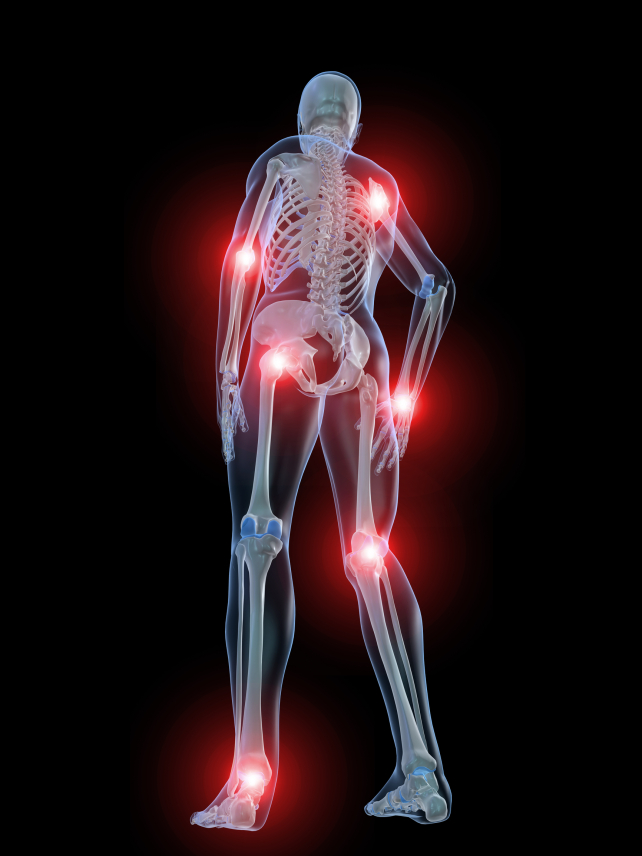 Joint pain?  Your organs may be 'sticky'!